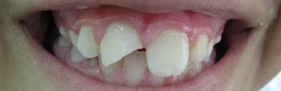 לפני טיפול בשן