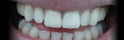 אחרי טיפול בשן